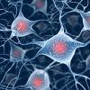Alzheimer's Pocket Videos